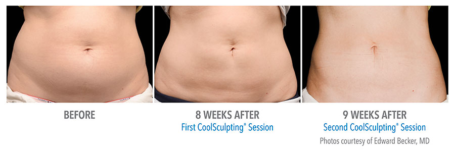 Before and after with coolsculpting