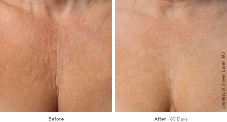 Ultherapy B+A 2.jpg