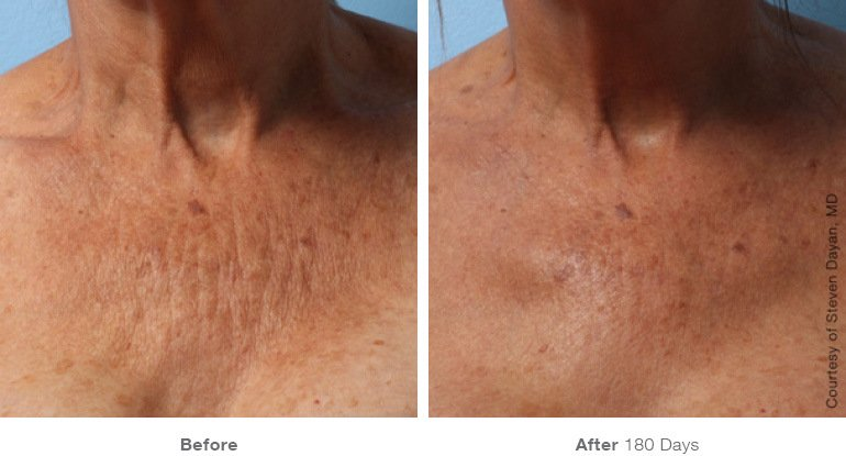 Ultherapy B+A 3.jpg