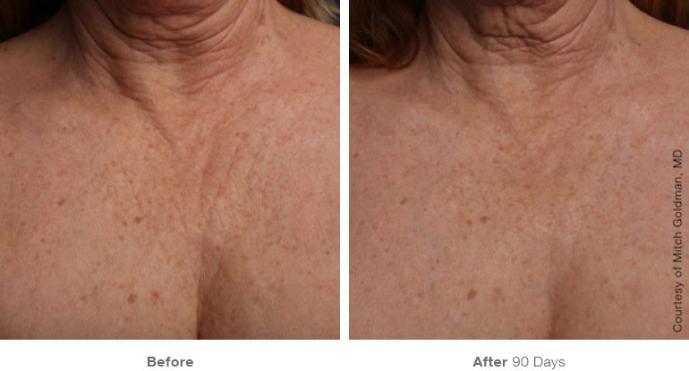 Ultherapy B+A 4.jpg