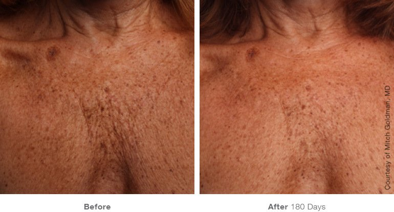 Ultherapy B+A 5.jpg