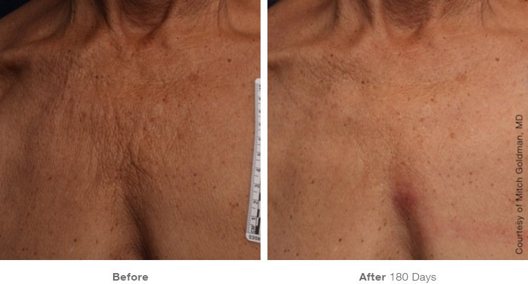 Ultherapy B+A 6.jpg