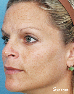 Facial Rejuvenation - Youtherapy