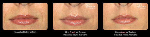 Three Solutions to Reduce Fine Lines and Wrinkles around Your Lips