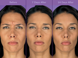 How Botox works and how long does a Botox Injection Last?