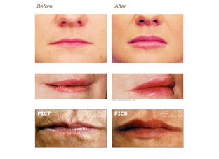 Different Types of Facial Fillers