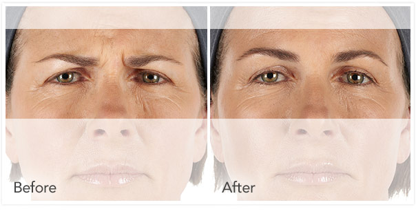 Botox Injections for under eye wrinkles
