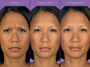 Botox Injections for Frown Lines