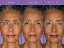 Botox Injections for Forehead Lines
