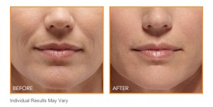 Botox For Mouth Lines and Wrinkles
