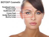 Does preventative Botox work?