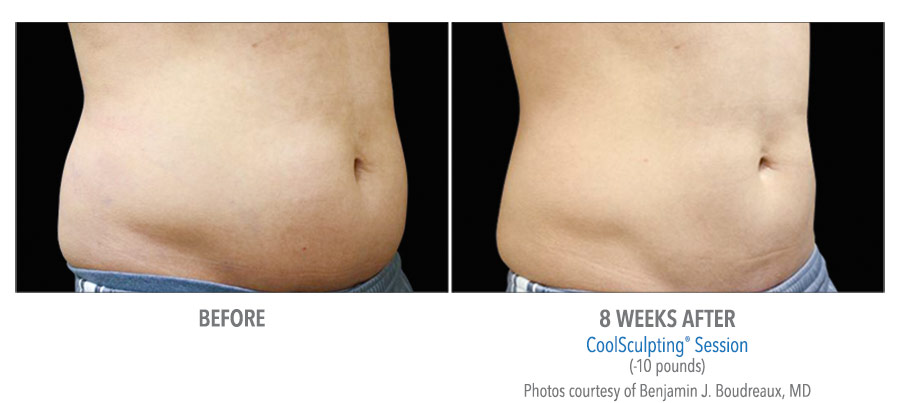 Video: How long do the effects of CoolSculpting last?