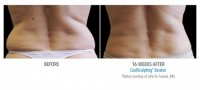 Video: What is the recovery time for CoolSculpting