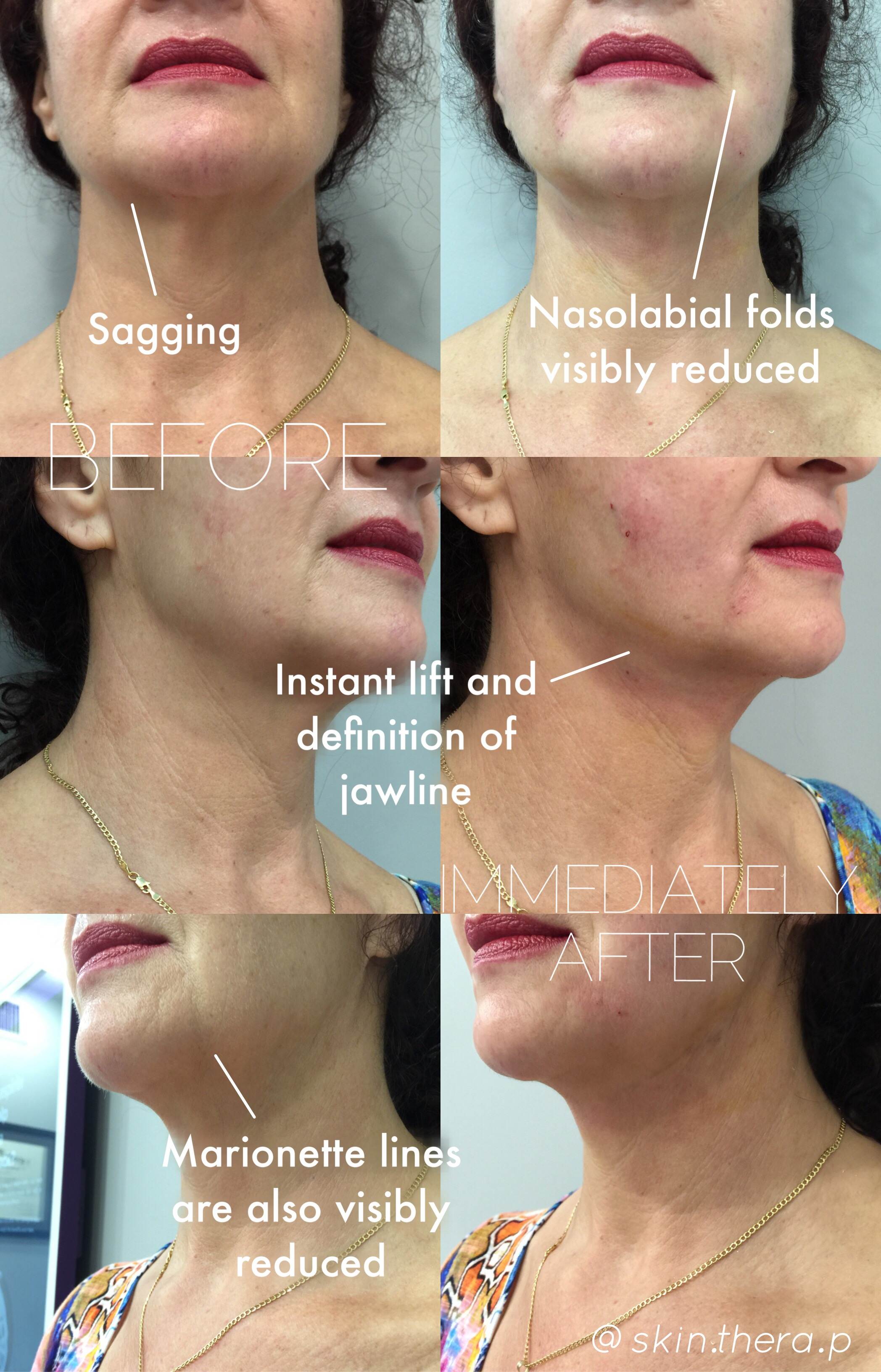 NovaThreads - Non-Invasive Face Lifting