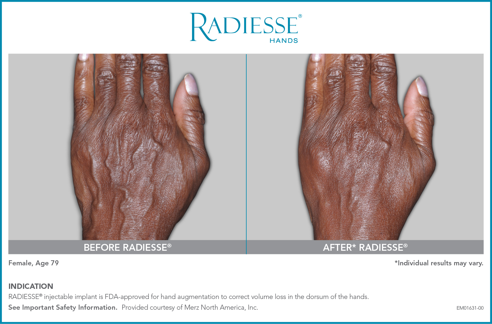 Radiesse for Hands
