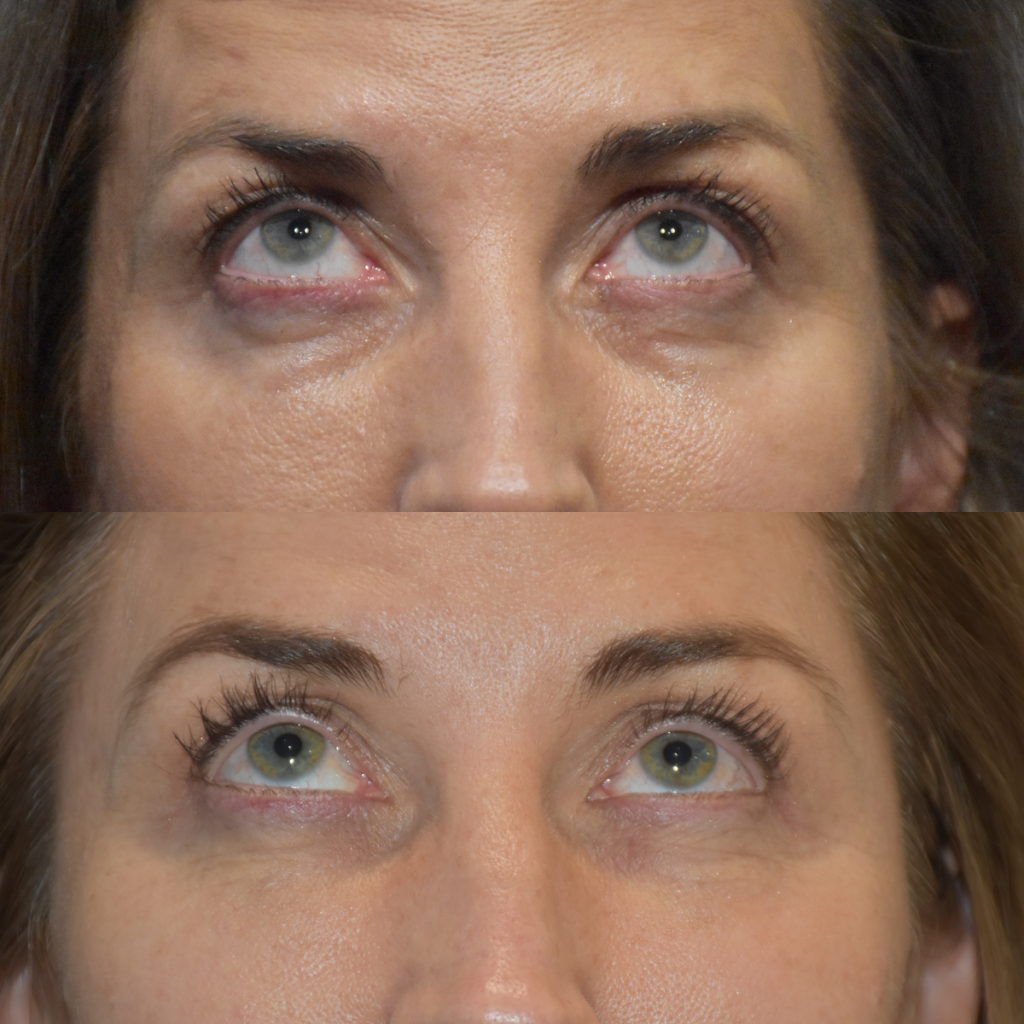 PRP For Undereyes and Face Lines