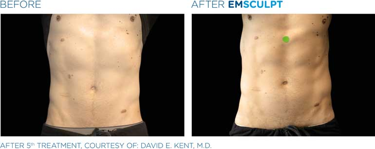 EmSculpt-Men-BA-sm8