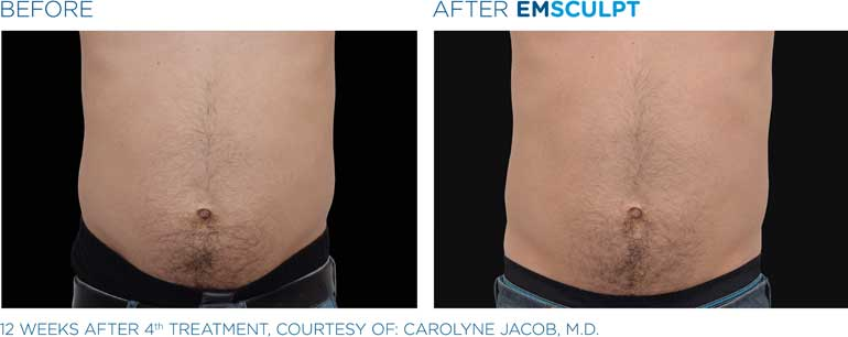 EmSculpt-Men-BA-sm9