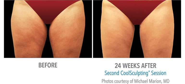 coolsculpting-thighs-after2.jpg