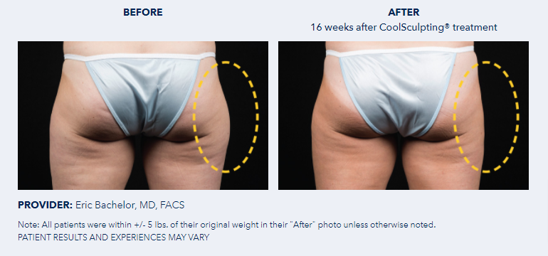 CoolSculpting®-Before-After-Pictures-CoolSculpting®