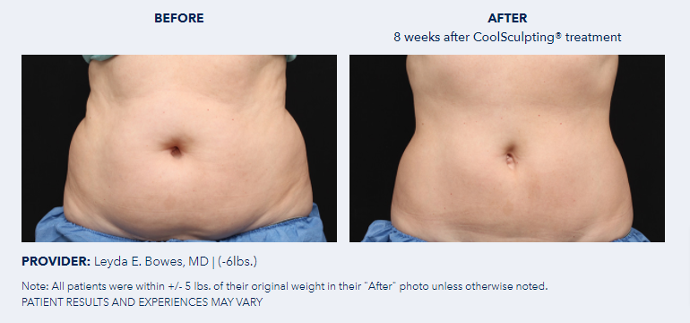 CoolSculpting®-Before-After-Pictures-CoolSculpting®2