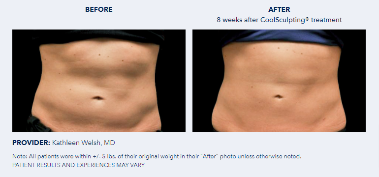 CoolSculpting®-Before-After-Pictures-CoolSculpting®4