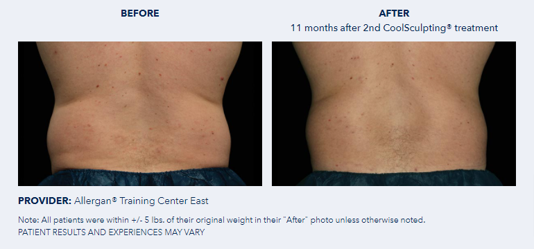 CoolSculpting®-Before-After-Pictures-CoolSculpting®6