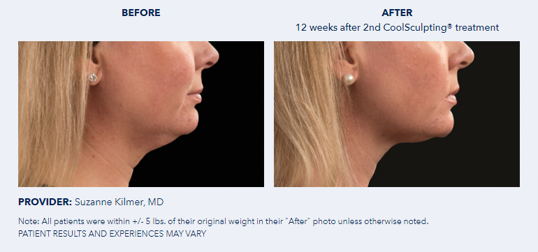 CoolSculpting®-Before-After-Pictures-CoolSculpting®8
