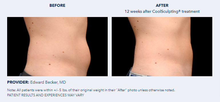 CoolSculpting®-Before-After-Pictures-CoolSculpting®9